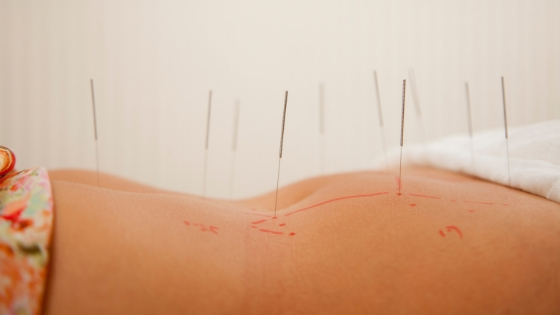 5 Reasons Your Surrogacy Should Include Fertility Acupuncture